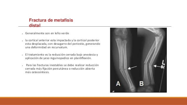 Tratamiento Tratamiento no Qx: en fracturas sin desplazamiento o mínimamente desplazadas (tipo I y tipo II de Meyers), se...
