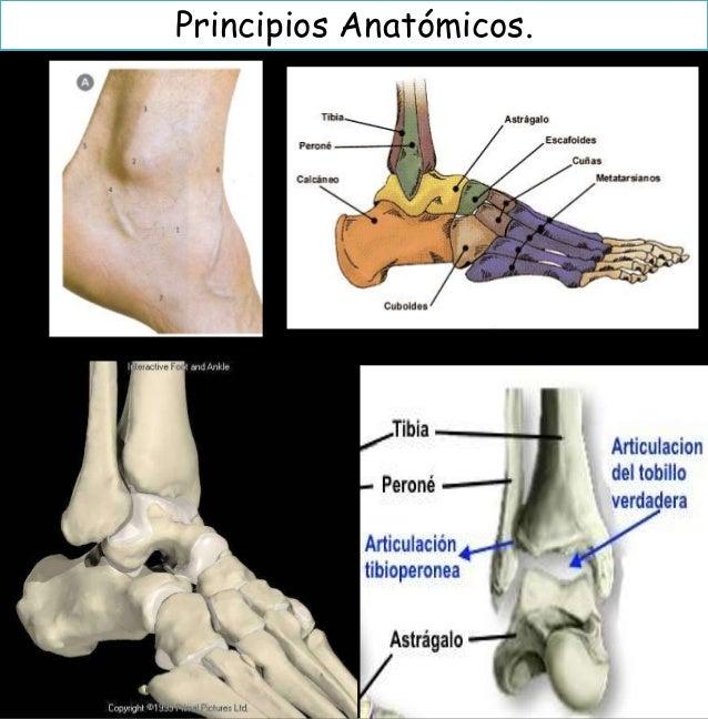 Fracturas de tobillo TRAUMATOLOGIA Slide 2