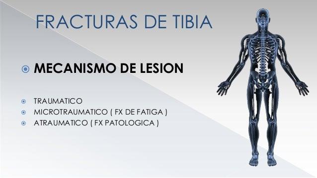 MECANISMO DE LESION  TRAUMATICO  DIRECTO  INDIRECTO : ( TORSION CON BLOQUEO DEL PIE )