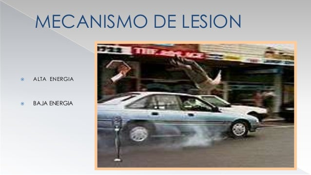 MECANISMO DE LESION  MICROTRAUMATISMOS ( FX FATIGA )  FRECUENCIA 4 %  BAILARIENES : TERCIO MEDIO  SALTADORES : TERCIO ...