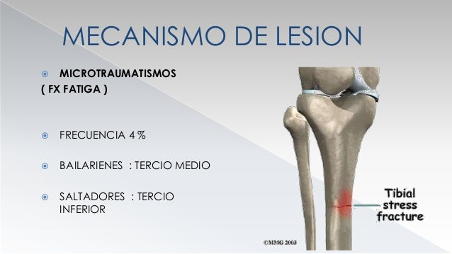 MECANISMO DE LESION  ATRAUMATICO ( FX EN TERRENO PATOLOGICO)  METASTASIS  TUMOR PRIMARIO  ENFERMEDAD DE PAGET