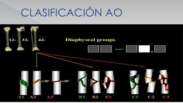 DESPLAZAMIENTOS  A ) TRANSVERSAL O BAYONETA  B) ANGULAR O ANGULACION  C) LONGITUDINAL O ACORTAMIENTO  D) ROTATORIO O D...