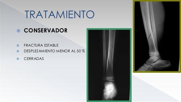 CONSERVADOR  VENTAJAS  FALTA DE CICATRIZ  DISMINUCION COSTO  DISMINUCION DEL RIESGO DE INFECCION  ESCASO PORCENTAJE D...