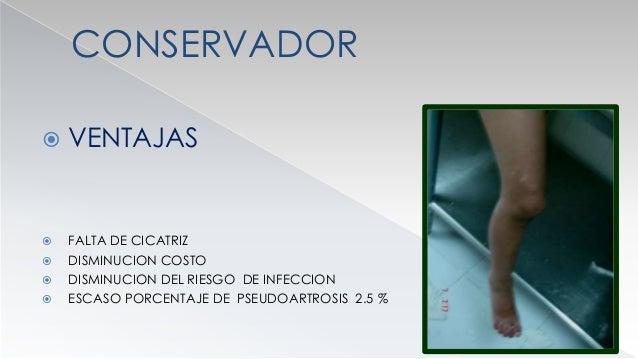 CONSERVADOR  DESVENTAJAS  ENFERMEDAD DEL YESO  RIGIDEZ ARTICULAR  TROMBOEMBOLISMO  TIEMPO DE INMOVILIZACION