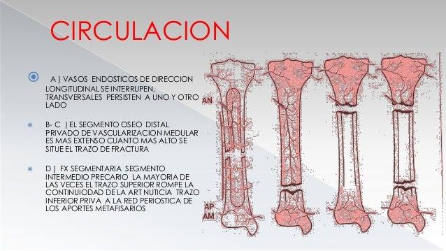 Objetivos  Tratamiento inicial de una fractura diafisaria de tibia  Discutir el tratamiento quirurgico y no quirurgico. ...