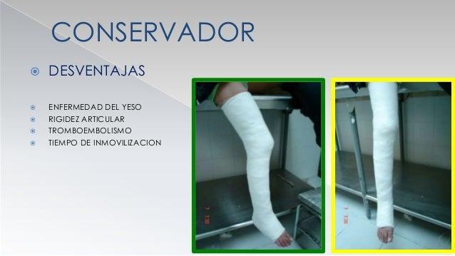 CONSERVADOR  INMOVILIZACION CON YESO  CRUROPEDIO ( PIE ANGULO RECTO Y RODILLA A 20- 30 GRADOS FLEXION )