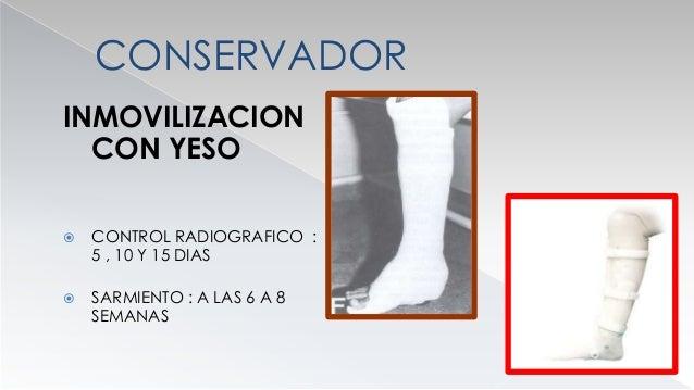 QUIRURGICO  INDICACIONES ABSOLUTAS  FX INTRAARTICULAR ASOCIADA CON FRACTURA DE LA DIAFISIS  FRACTURA EXPUESTA  PERDIDA...
