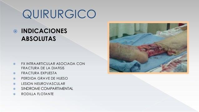 QUIRURGICO  RELATIVA  INCAPACIDAD PARA MANTENER LA REDUCCION  ACORTAMIENTO RELATIVO  FRACTURAS SEGMENTARIAS  FRACTURA...