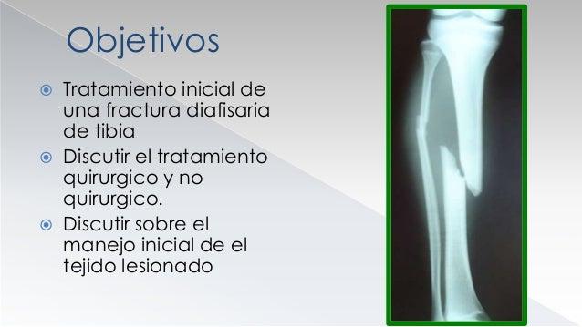 FRACTURAS DE TIBIA  1/3 de su superficie es subcutáneo  Las fracturas abiertas son mas frecuentes  Las fracturas de alt...
