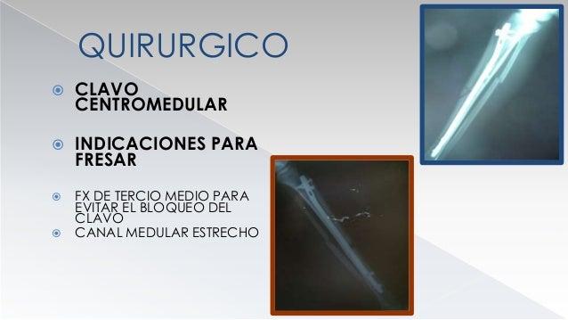 QUIRURGICOS  CLAVO CENTROMEDULAR  CONTRAINDICACIONES  PACIENTES JOVENES CON EPIFISIS ABIERTAS  INFECCION  FX DE PLATI...