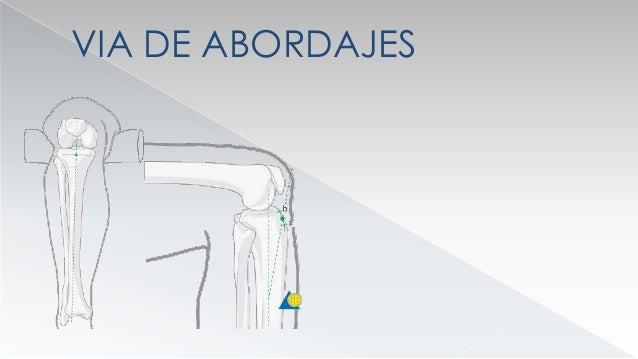 QUIRURGICO  FIJADORES EXTERNOS  INDICACIONES  FX CERRADAS : EN FX PANDIAFISARIAS  EN CONTUSION CUTANEA SEVERA  FX EXP...