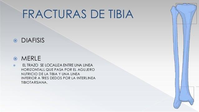 FRACTURAS DE TIBIA  HISTORIA  BOHLER 1936 FX GRAVES TRATAS CON TRACCION ESQUELETICA 3 SEMANAS Y YESO AMBULATORIO.  COLT...