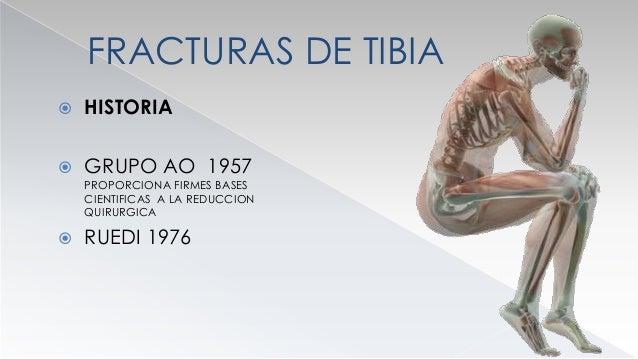 FRACTURAS DE TIBIA  FRECUENCIA  REPRESENTAN DEL 15 AL 20 %