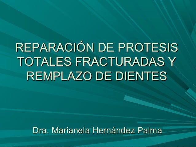 REPARACIÓN DE PROTESISREPARACIÓN DE PROTESIS TOTALES FRACTURADAS YTOTALES FRACTURADAS Y REMPLAZO DE DIENTESREMPLAZO DE DIE...