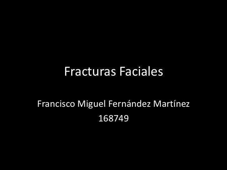 Fracturas FacialesFrancisco Miguel Fernández Martínez              168749
