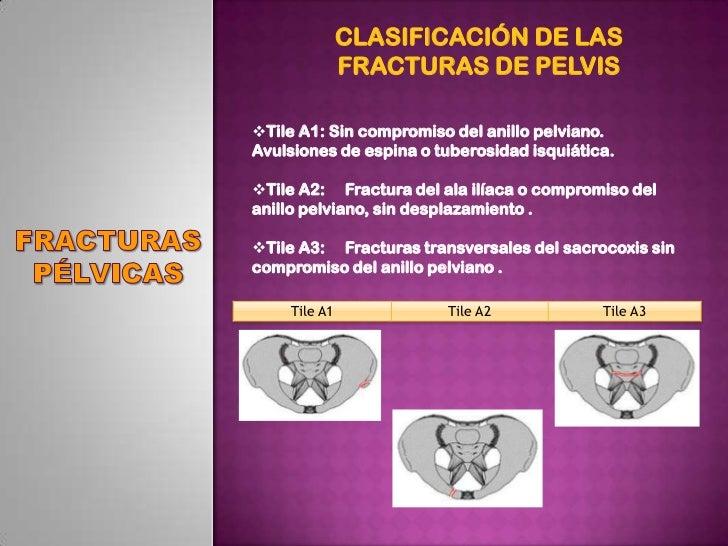 fracturas primeros auxilios pdf free