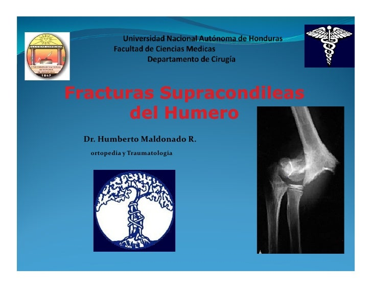 Fracturas Supracondileas       del Humero Dr. Humberto Maldonado R.  ortopedia y Traumatología