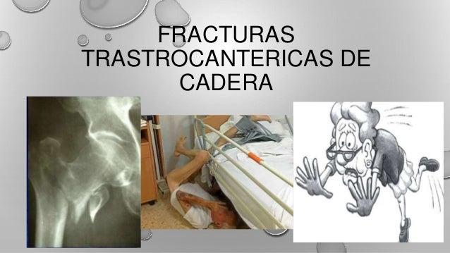 FRACTURAS TRASTROCANTERICAS DE CADERA