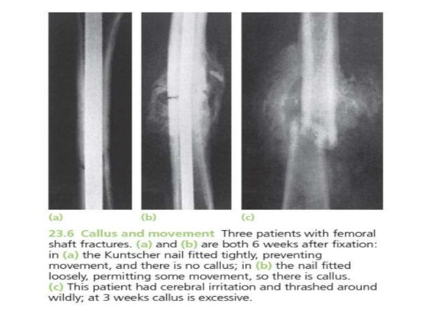 callus formation fracture – citybeauty,