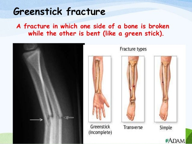 fracture and its nursing management, Human Body