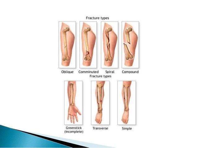 Fracture both bones leg class ug
