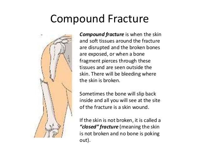 fractured bones, Human Body