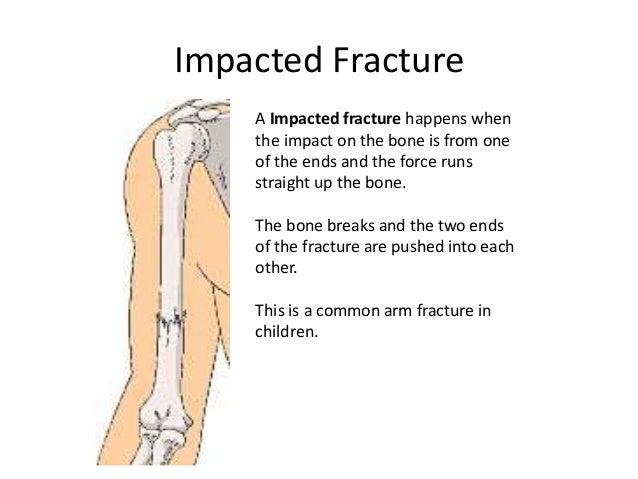 Fractured Bones