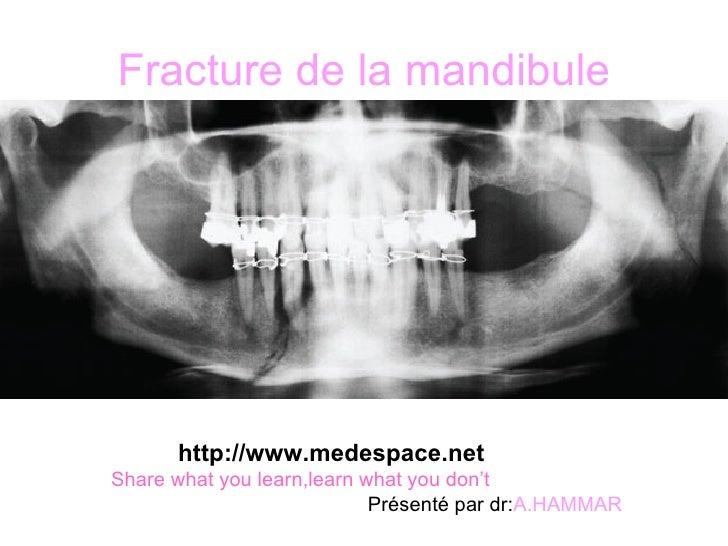 Fracture de la mandibule <ul><li>http://www.medespace.net </li></ul><ul><li>Share what you learn,learn what you don't </li...