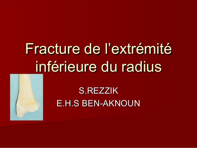 Fracture de l'extrémitéFracture de l'extrémité inférieure du radiusinférieure du radius S.REZZIKS.REZZIK E.H.S BEN-AKNOUNE...
