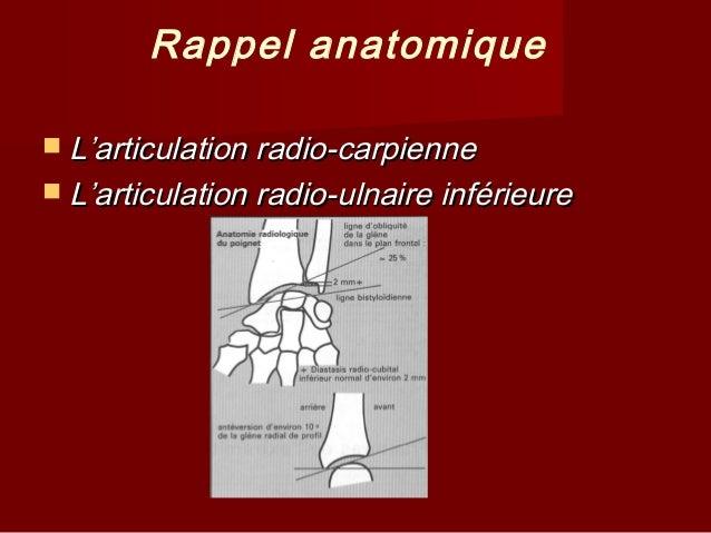 Fracture extreminte inferieure_radius Slide 3