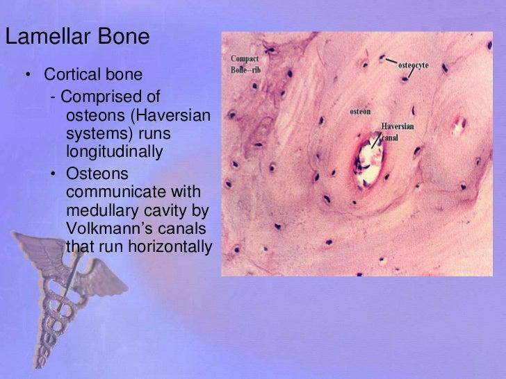 Fracture healing Slide 3