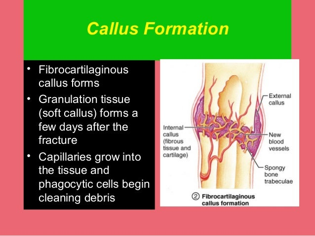 fracture healing, Muscles