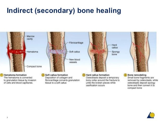 the biological sequence of healing bone fractures in basketball injuries Read about exercises for knee injury, and learn about symptoms, signs, treatment, home remedies, recovery times and prevention of knee injuries discover common causes in the knee, there are two main bursas, one above the kneecap (patella), and one below the knee joint near the front of the tibia bone tears of the.