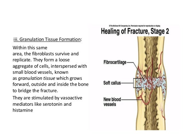 fracture healing and wound healing, Muscles