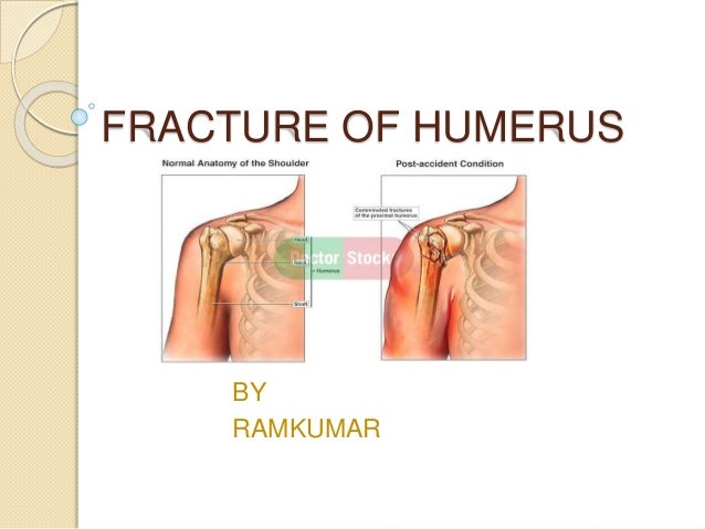Fracture of humerus