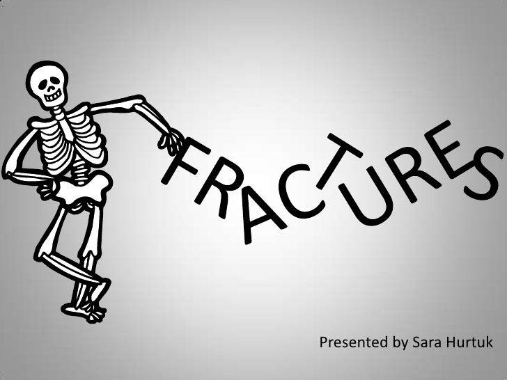 URE<br />FR<br />S<br />T<br />AC<br />Presented by Sara Hurtuk<br />