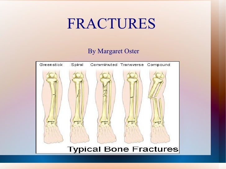 FRACTURES  By Margaret Oster