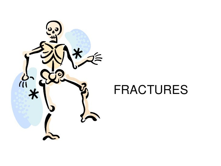 FRACTURES<br />