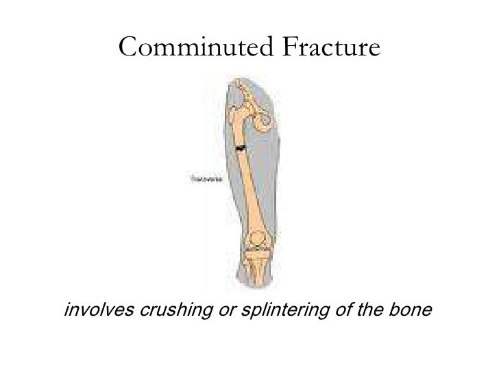 comminuted fracture – citybeauty, Human body