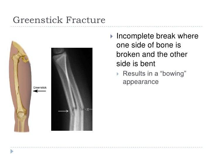 Fractures Greenstick Transverse Spiral