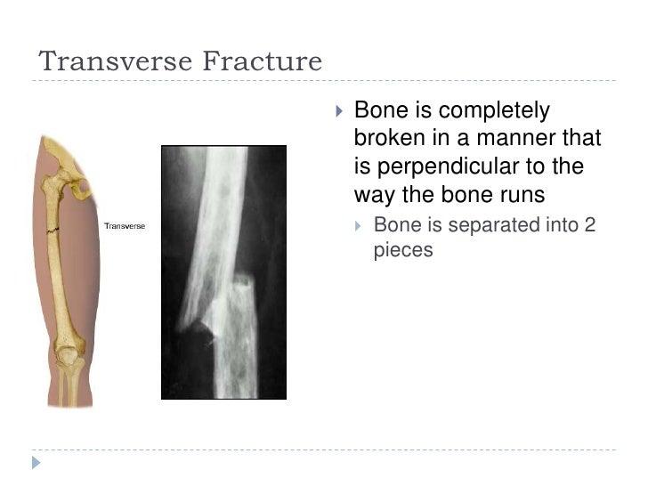 fractures: greenstick, transverse & spiral, Human body