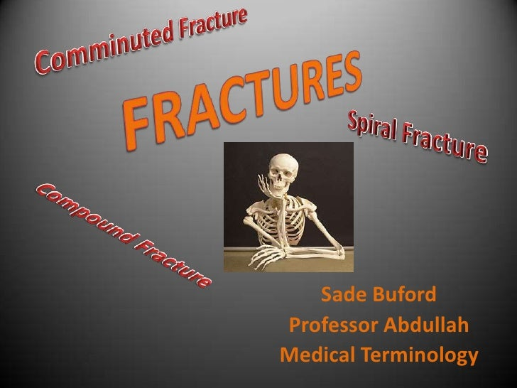 Comminuted Fracture<br />FRACTURES<br />Spiral Fracture<br />Compound Fracture<br />Sade Buford<br />Professor Abdullah<br...