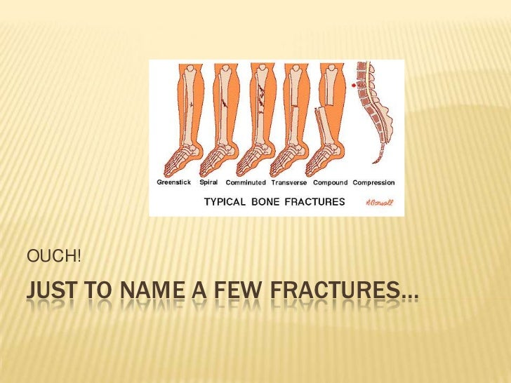 Just to name a few fractures…<br />OUCH! <br />
