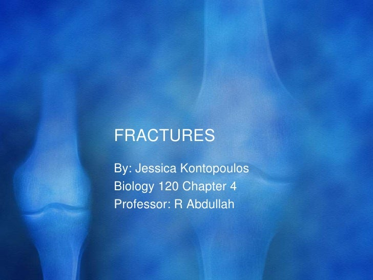 FRACTURES	<br />By: Jessica Kontopoulos<br />Biology 120 Chapter 4<br />Professor: R Abdullah<br />