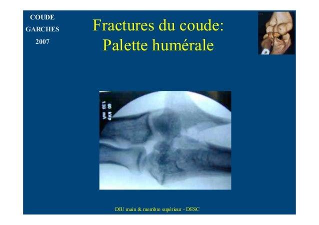 COUDEGARCHES   Fractures du coude:  2007           Palette humérale             DIU main & membre supérieur - DESC