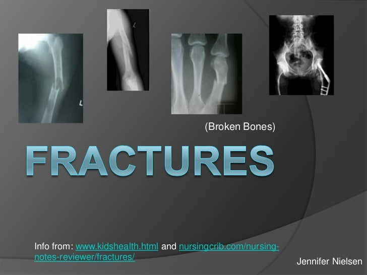 (Broken Bones)Info from: www.kidshealth.html and nursingcrib.com/nursing-notes-reviewer/fractures/                        ...