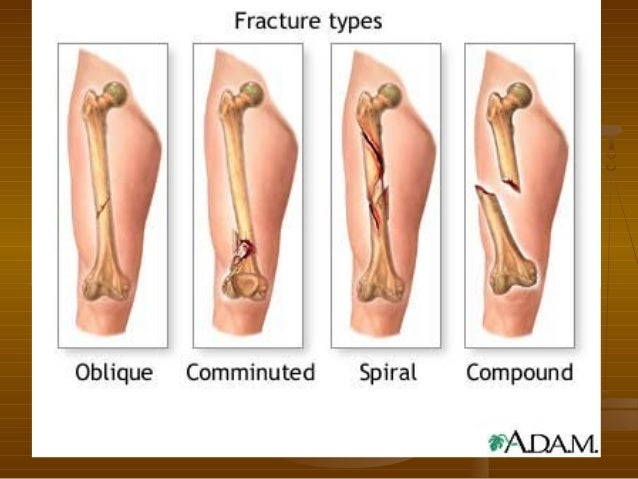 fractures and fracture healing, Human Body