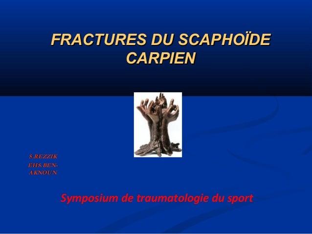 FRACTURES DU SCAPHOÏDE CARPIEN  S.REZZIK EHS.BENAKNOUN  Symposium de traumatologie du sport