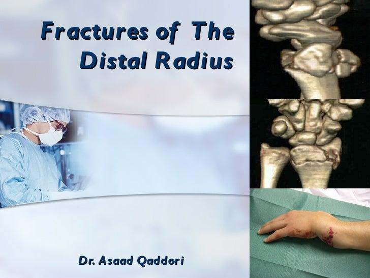 Fr actures of The    Distal R adius   Dr. A saad Qaddor i