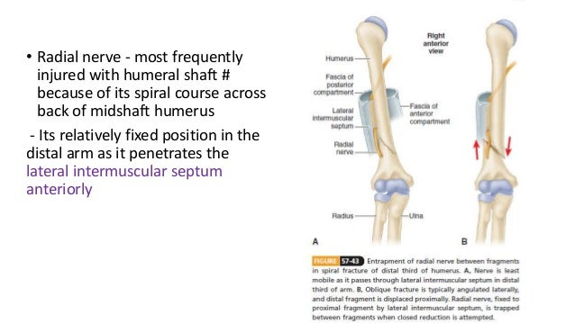 Fractures of the humeral shaft with radial nerve